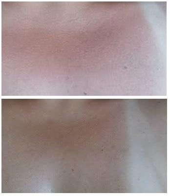 Smrekomaz-soncne-opekline